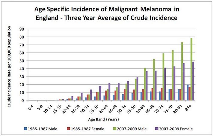 Data showing growth in UK melanoma rates