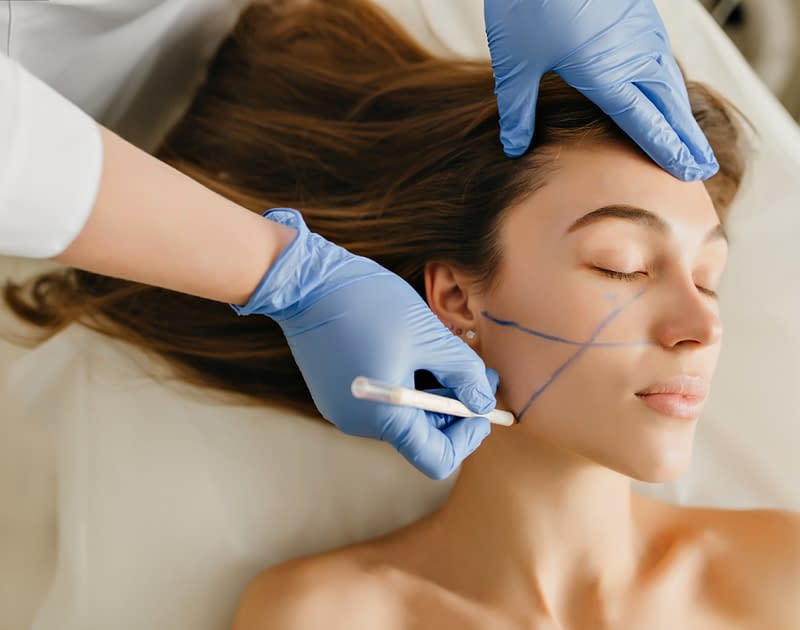 doctor hands draw mark ups on female patients face