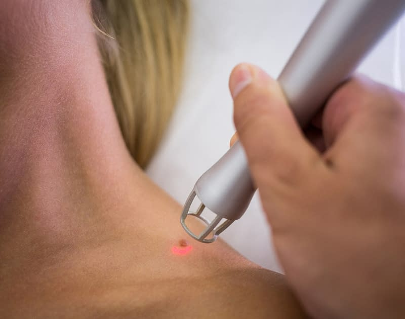 close up of a hand holding medical device over a patients mole