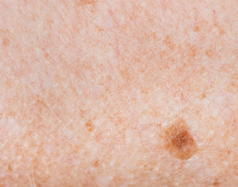 close up of freckle on skin